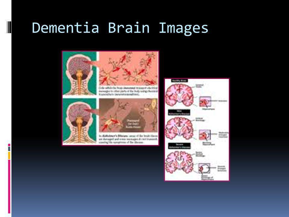Dementia Brain Images