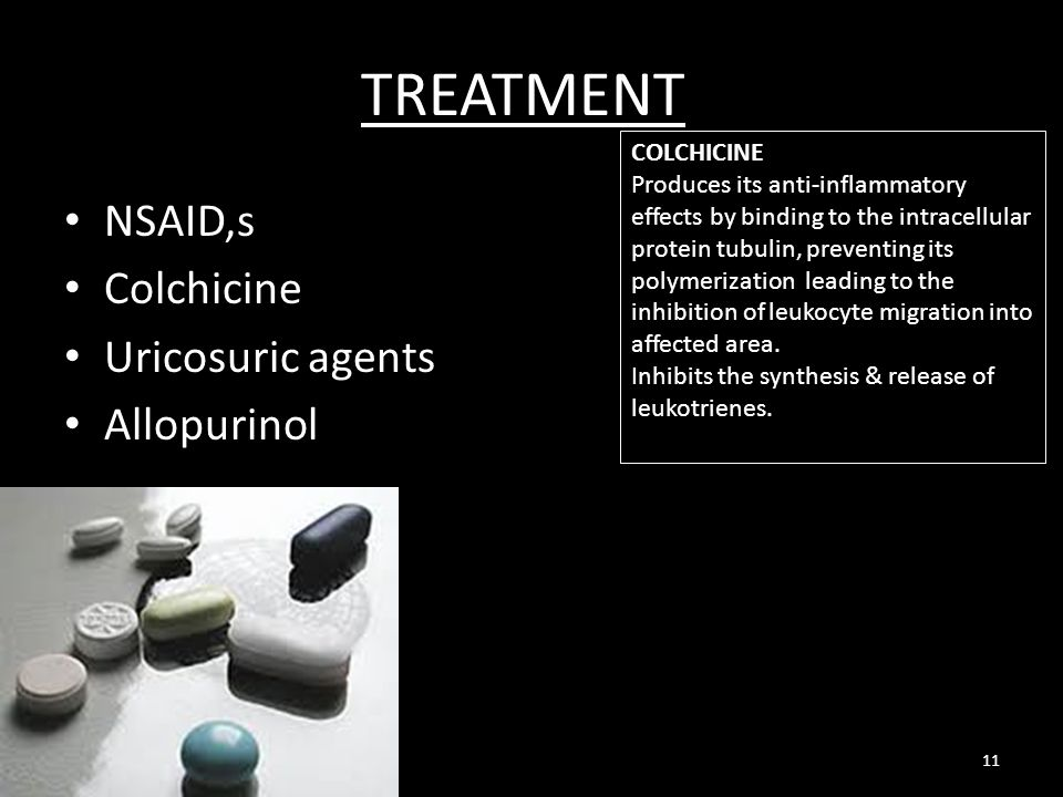 TREATMENT NSAID,s Colchicine Uricosuric agents Allopurinol COLCHICINE