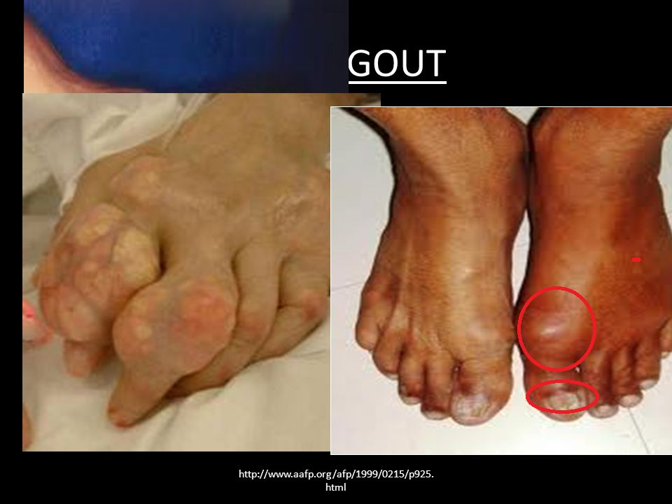 ACUTE GOUT Acute gout is a painful condition that typically affects one joint.