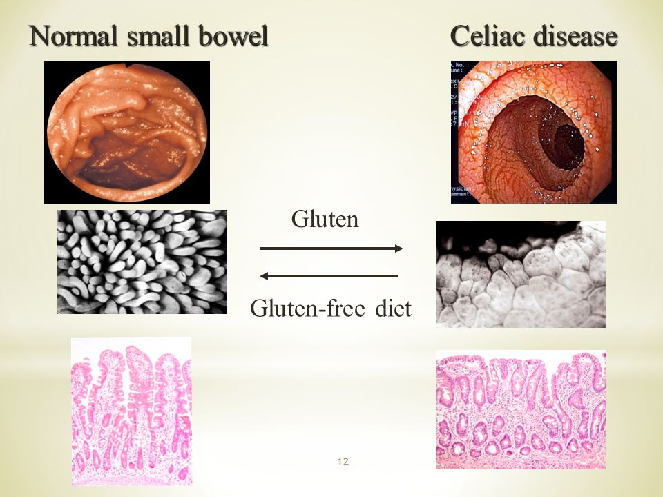 Normal small bowel Celiac disease Gluten Gluten-free diet