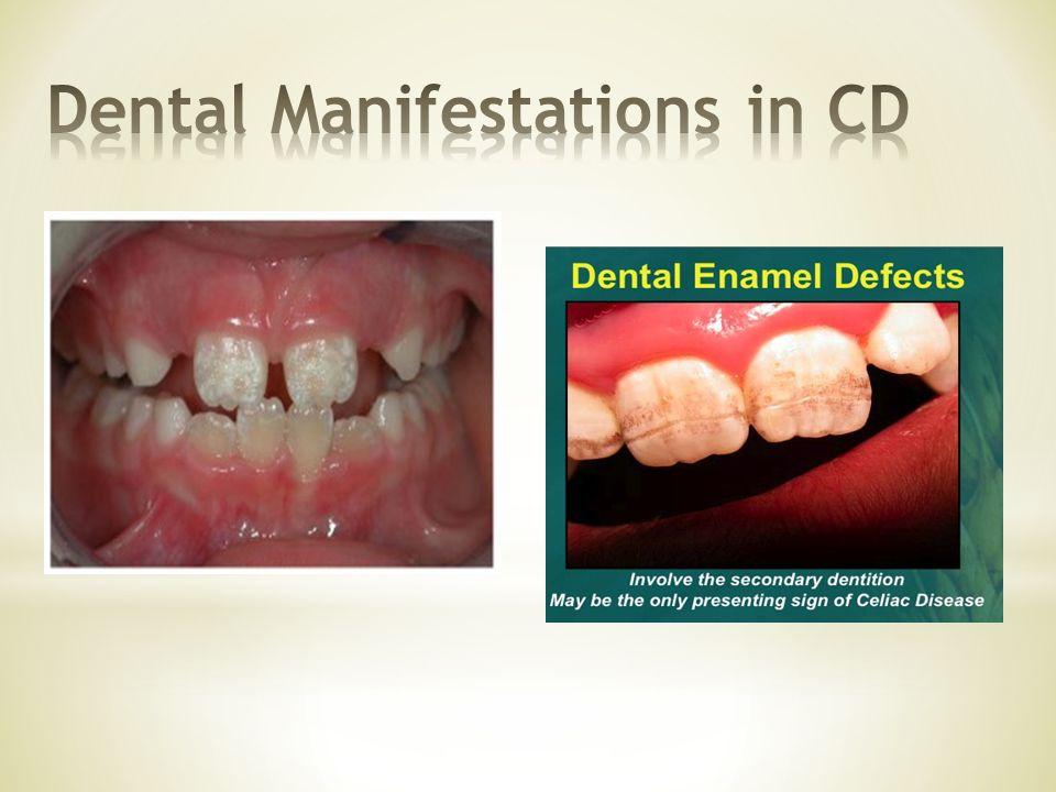 Dental Manifestations in CD