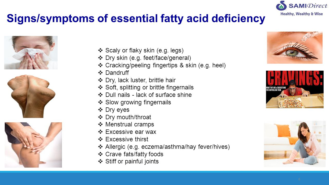 Signs/symptoms of essential fatty acid deficiency