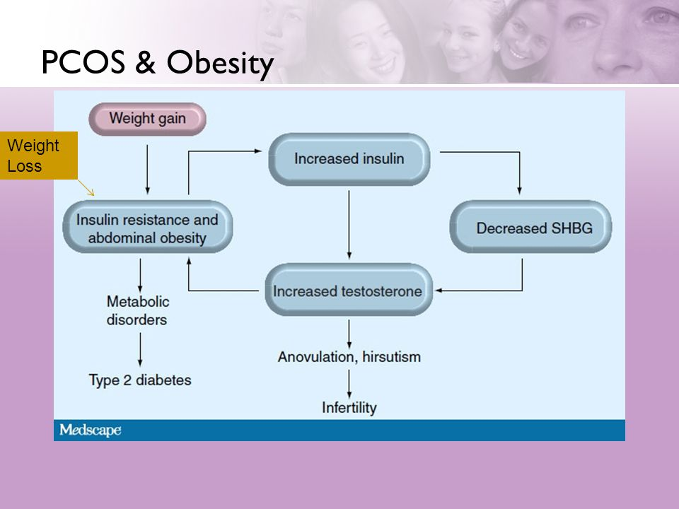 PCOS & Obesity Weight Loss