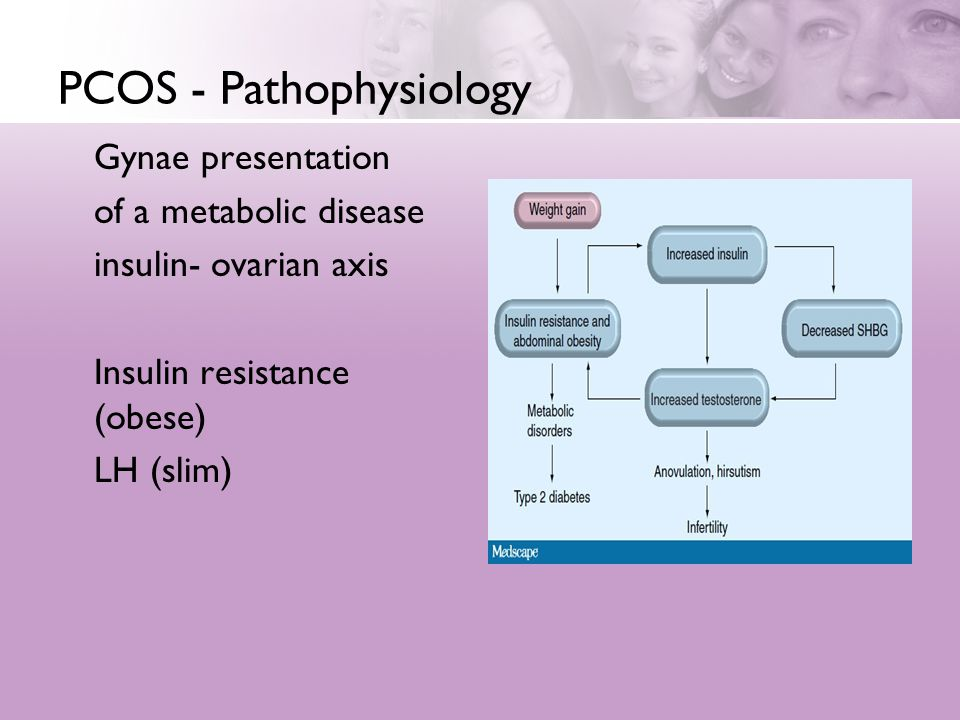 PCOS - Pathophysiology