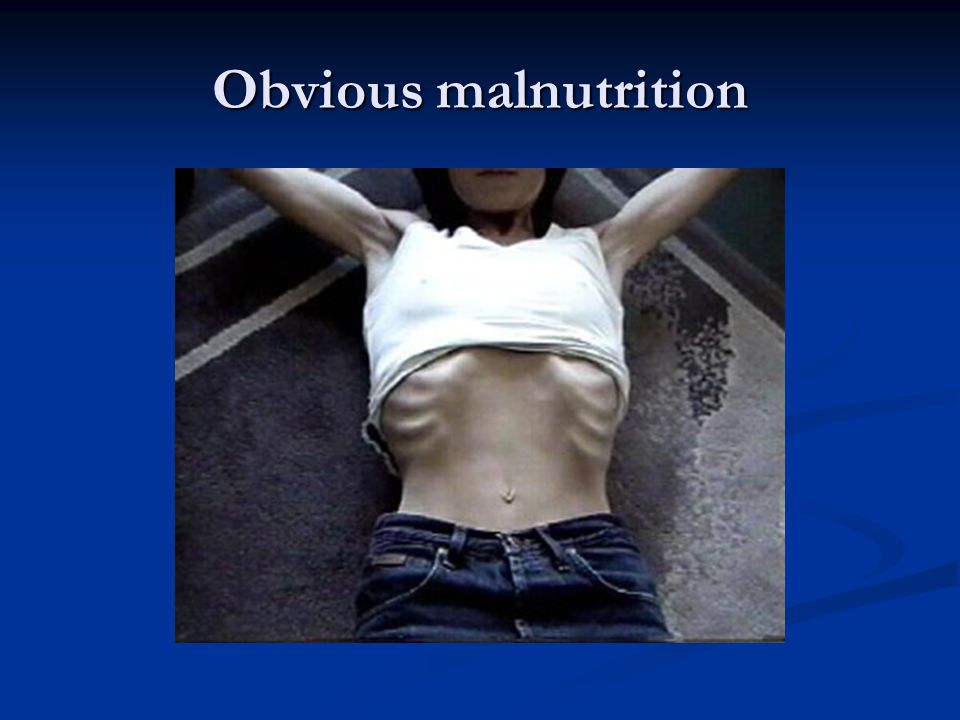 Obvious malnutrition