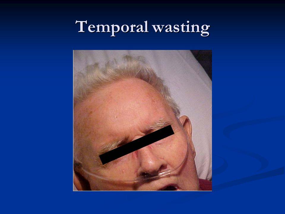 Temporal wasting