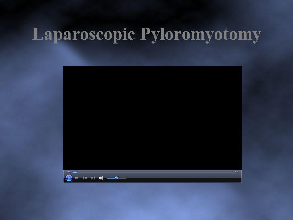 Laparoscopic Pyloromyotomy