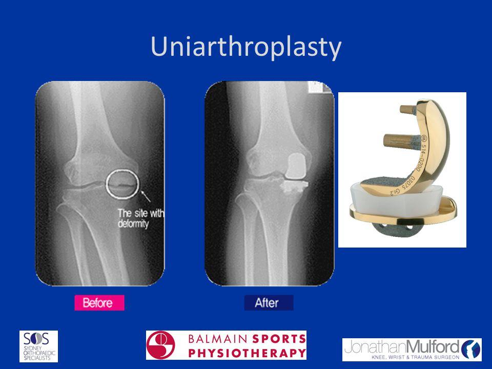Uniarthroplasty