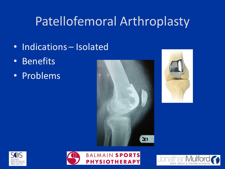 Patellofemoral Arthroplasty