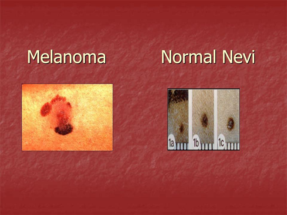 Melanoma Normal Nevi