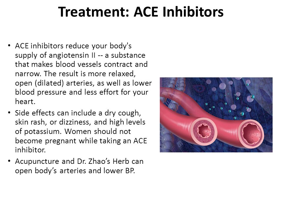 Treatment: ACE Inhibitors