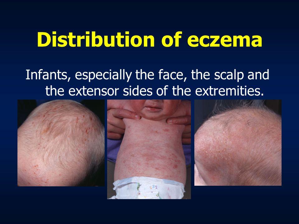 Distribution of eczema