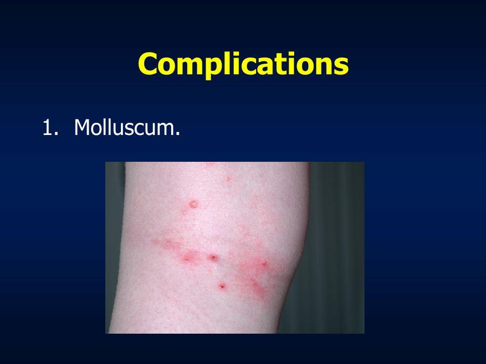 Complications Molluscum.