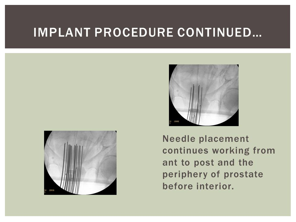 IMPLANT PROCEDURE CONTINUED…