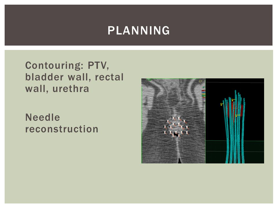 Planning Contouring: PTV, bladder wall, rectal wall, urethra