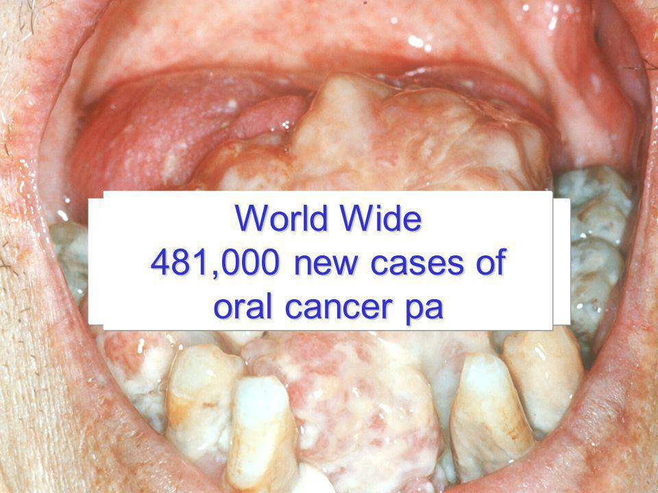 World Wide Oral cancer kills 481,000 new cases of