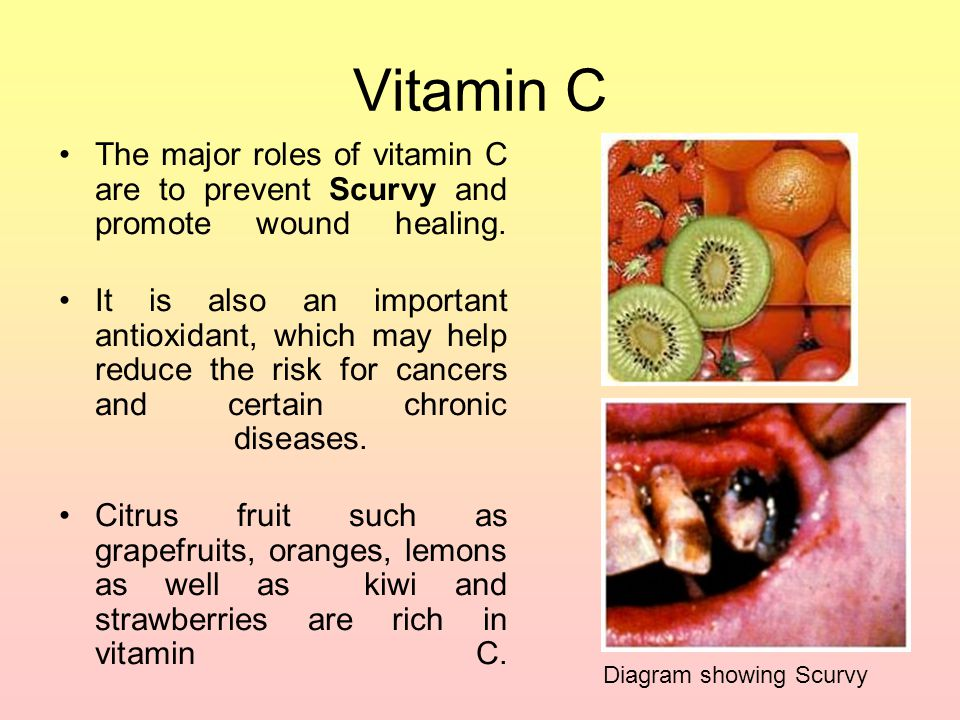 Vitamin C The major roles of vitamin C are to prevent Scurvy and promote wound healing.