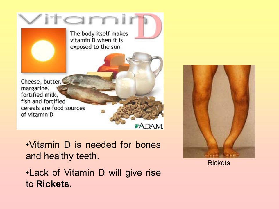Vitamin D is needed for bones and healthy teeth.