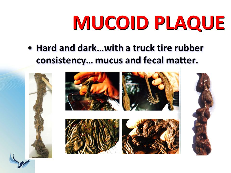 MUCOID PLAQUE Hard and dark…with a truck tire rubber consistency… mucus and fecal matter.