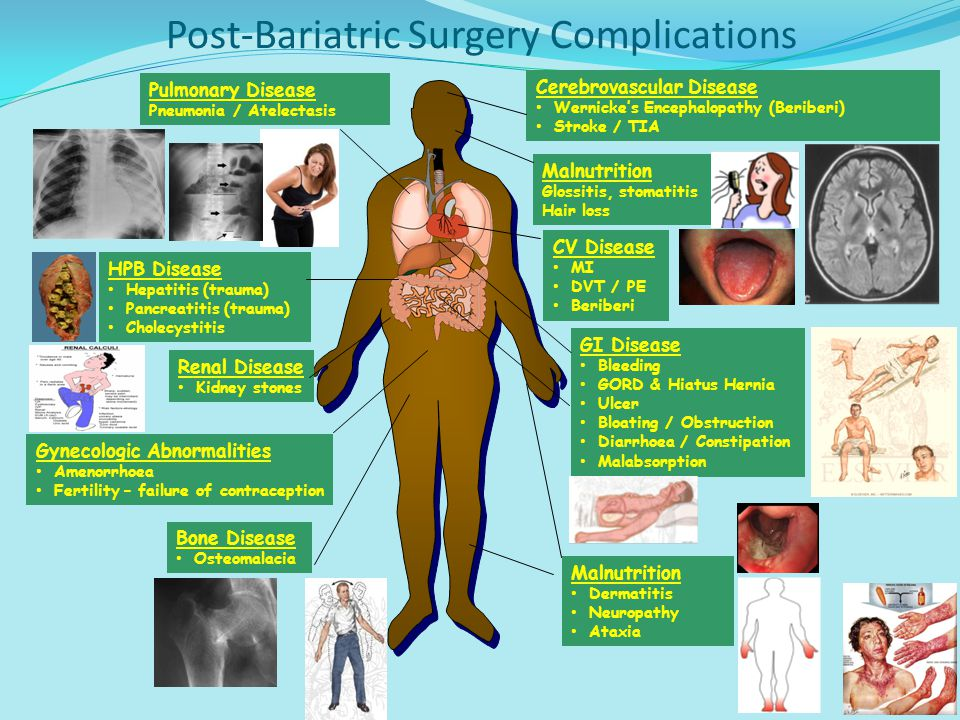 Post-Bariatric Surgery Complications