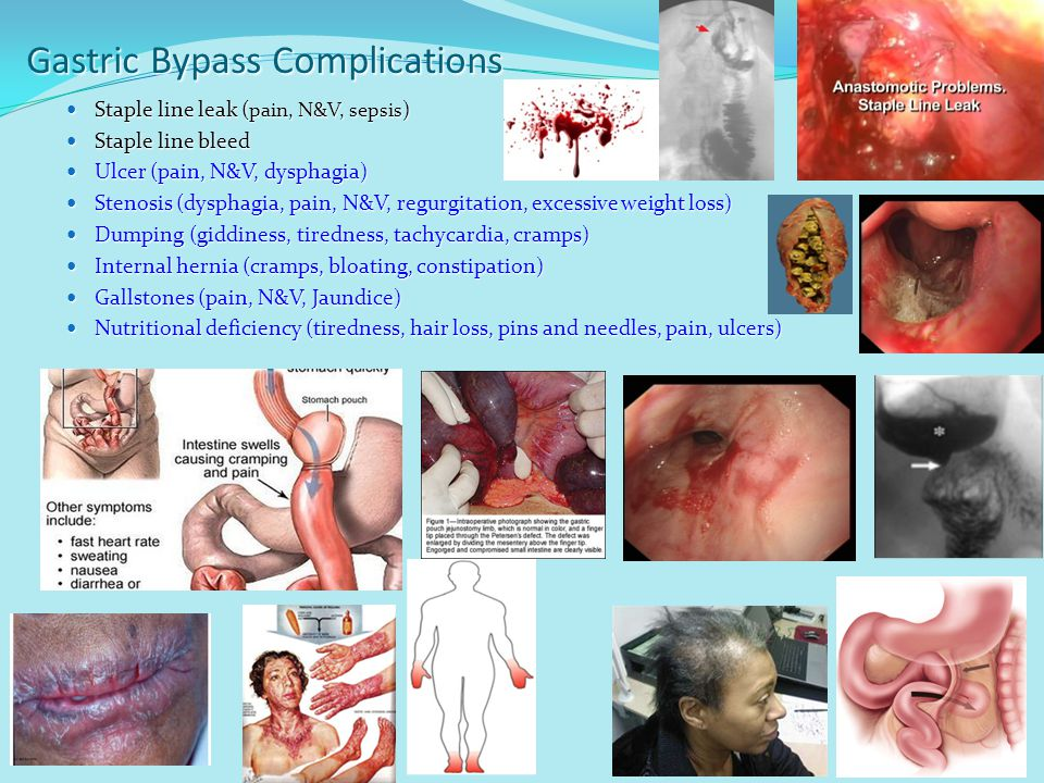Gastric Bypass Complications