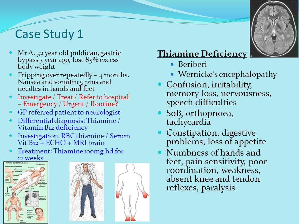 Case Study 1 Thiamine Deficiency