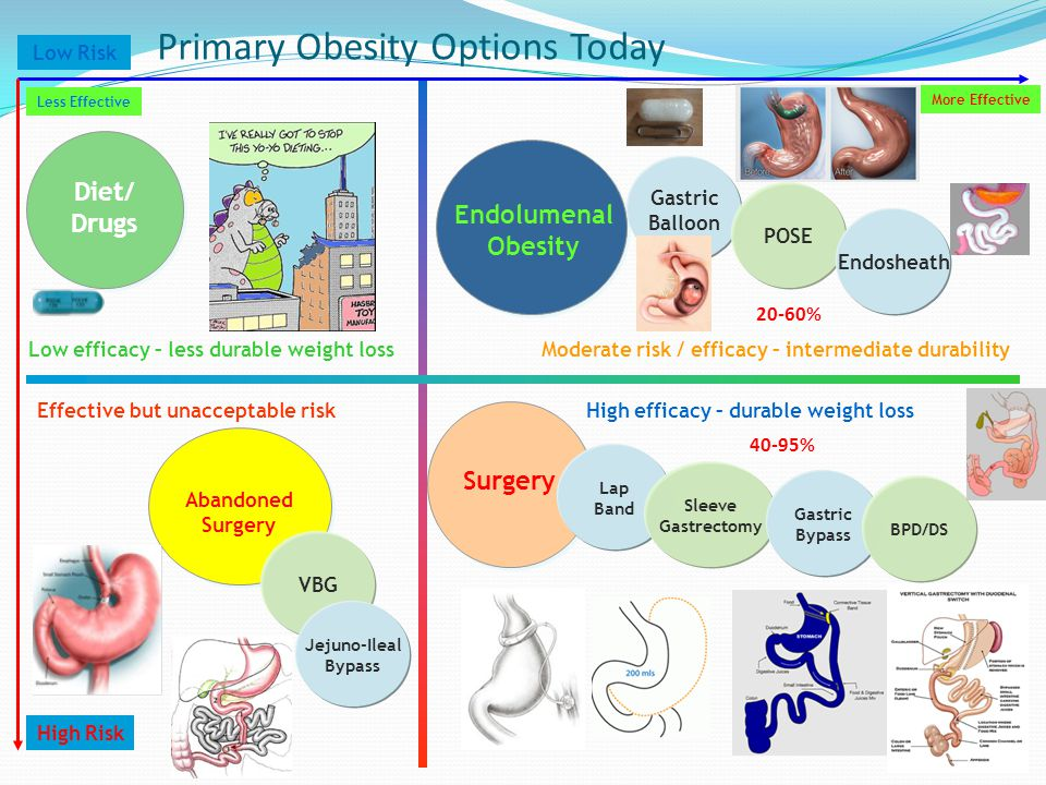 Primary Obesity Options Today