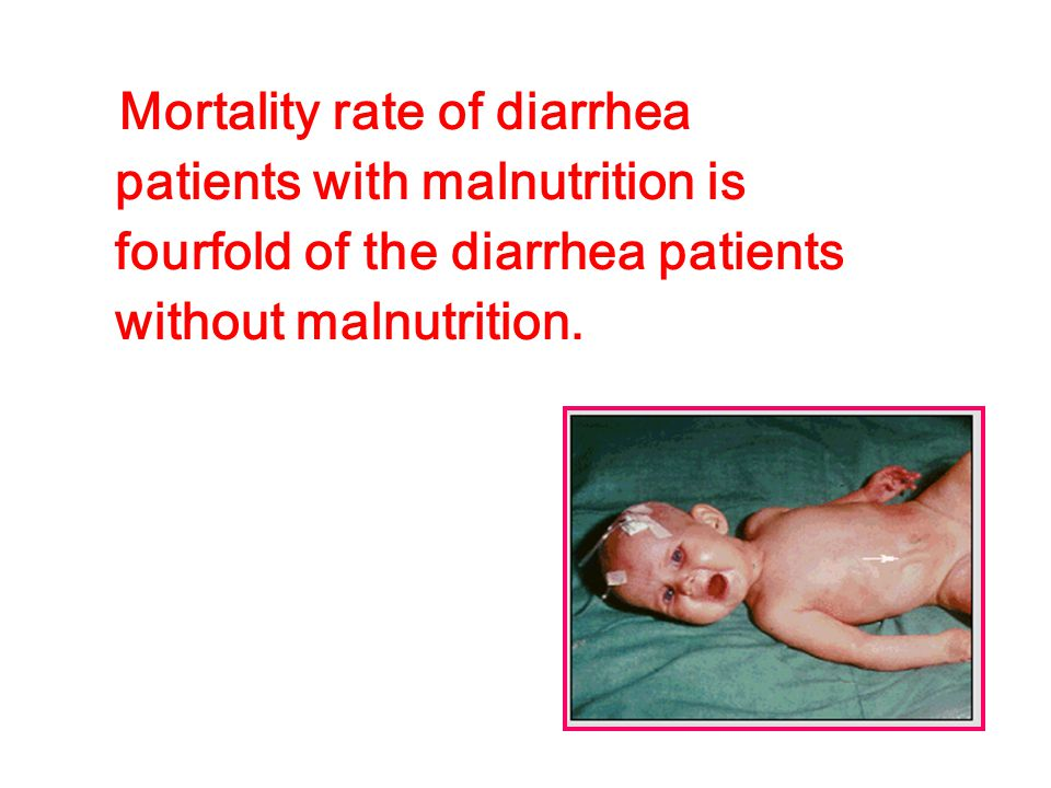 Mortality rate of diarrhea patients with malnutrition is fourfold of the diarrhea patients without malnutrition.