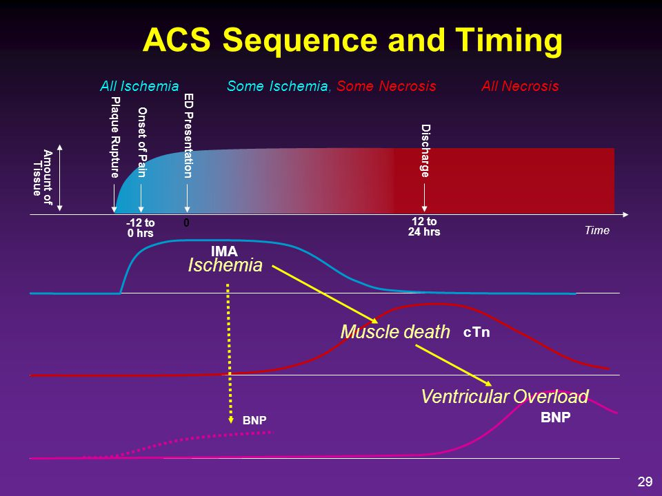 ACS Sequence and Timing