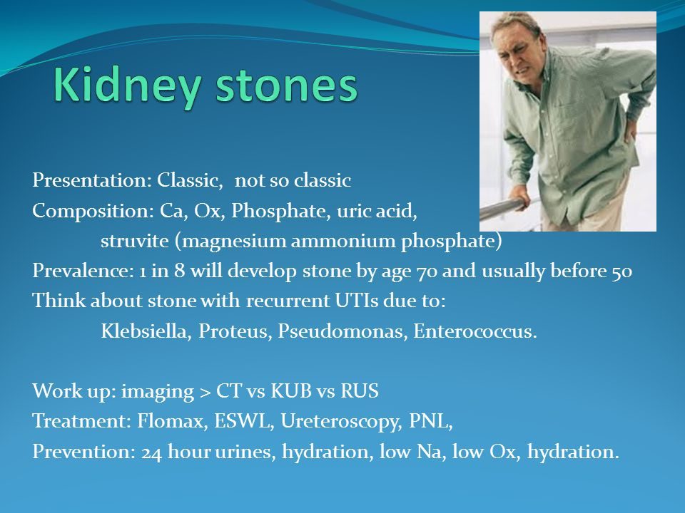 Kidney stones Presentation: Classic, not so classic
