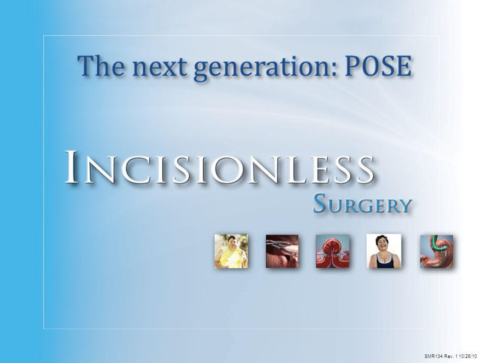 The next generation: POSE