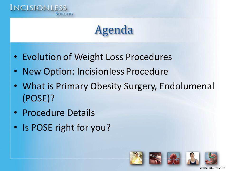 Evolution of Weight Loss Procedures New Option: Incisionless Procedure