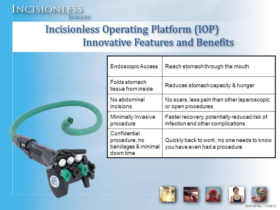 Incisionless Operating Platform (IOP) Innovative Features and Benefits