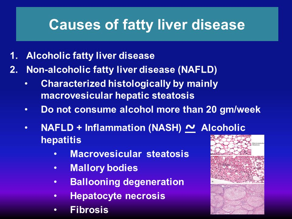 Causes of fatty liver disease