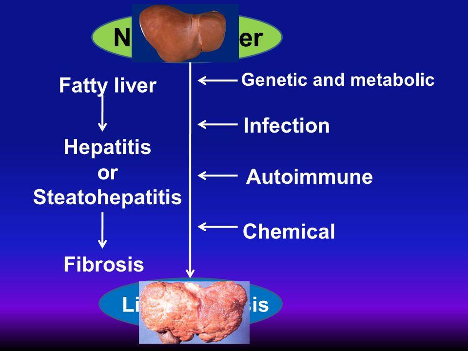 Normal liver Fatty liver Infection Hepatitis or Steatohepatitis