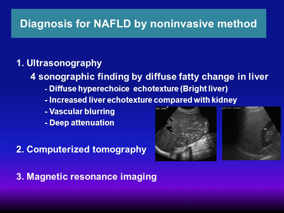 Diagnosis for NAFLD by noninvasive method
