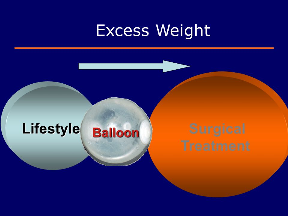 Excess Weight Surgical Treatment Lifestyle Balloon 51