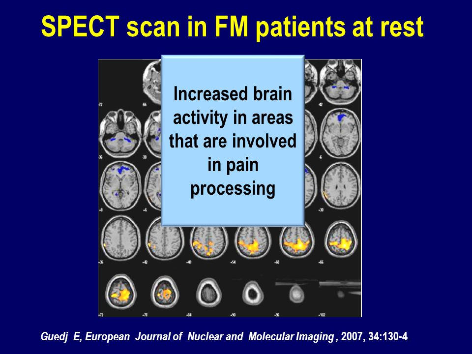 SPECT scan in FM patients at rest