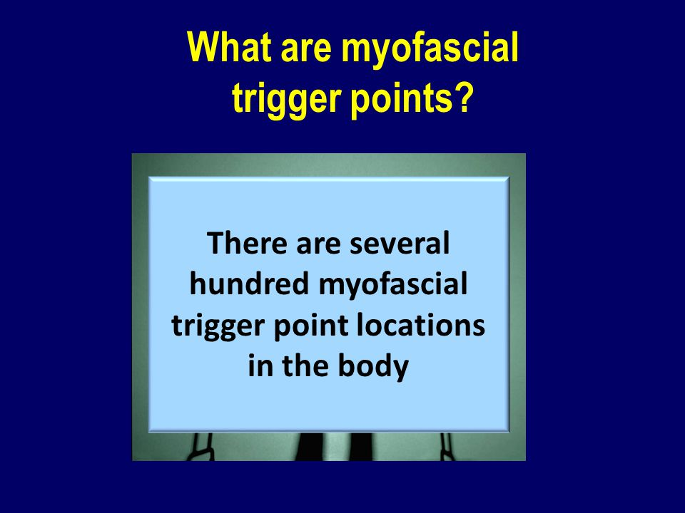 What are myofascial trigger points