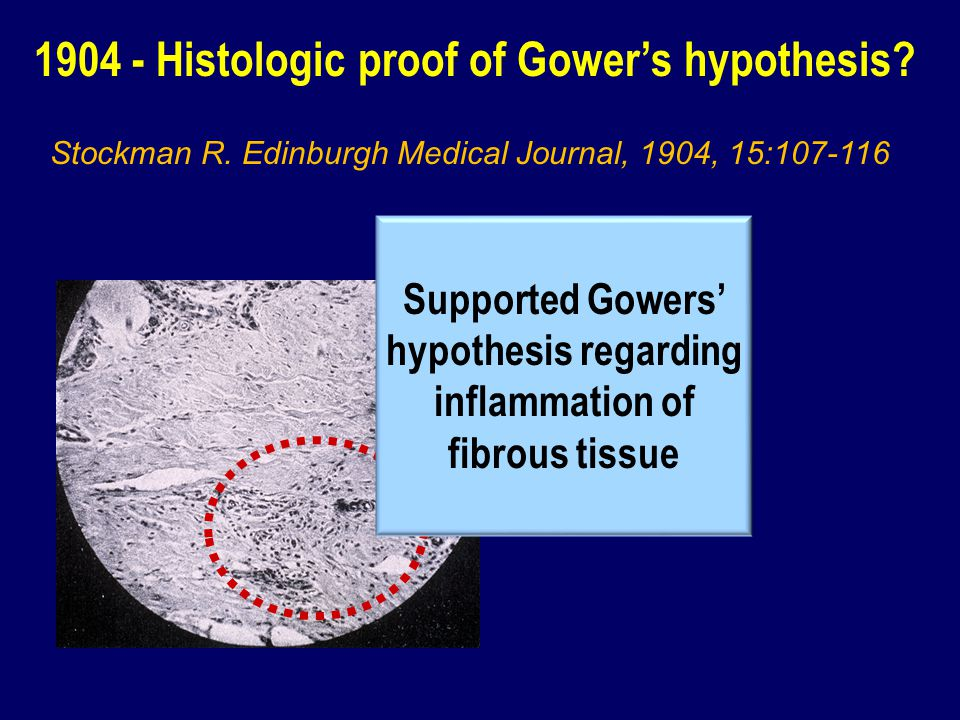 Supported Gowers' hypothesis regarding inflammation of fibrous tissue