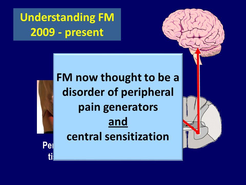 Understanding FM 2009 - present