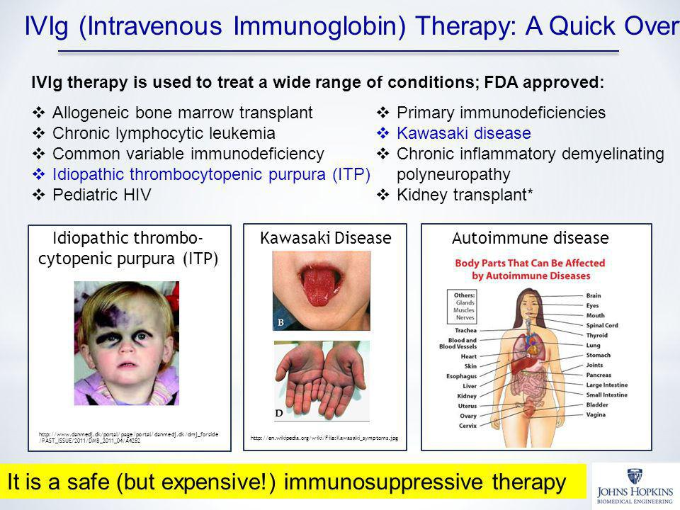Idiopathic thrombo-cytopenic purpura (ITP)