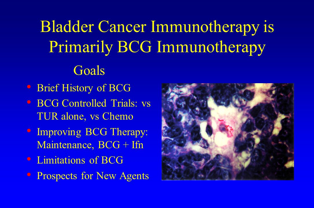 Bladder Cancer Immunotherapy is Primarily BCG Immunotherapy