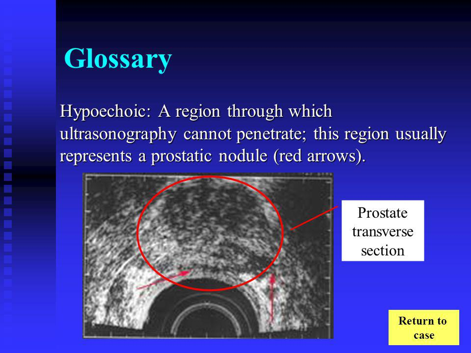 Prostate transverse section