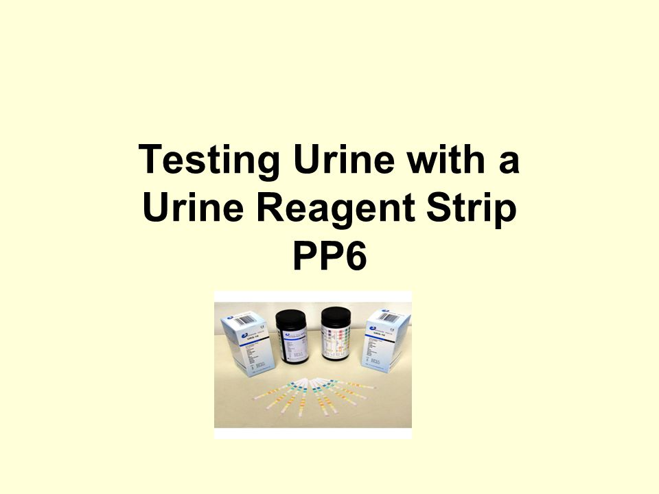 Testing Urine with a Urine Reagent Strip PP6