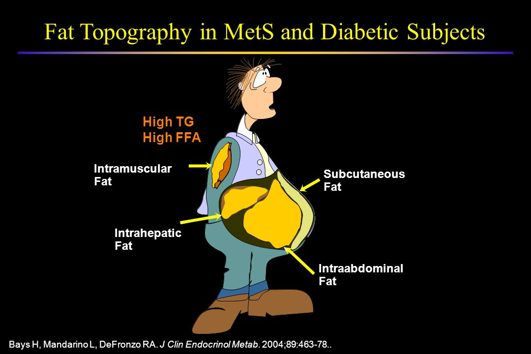 Fat Topography in MetS and Diabetic Subjects