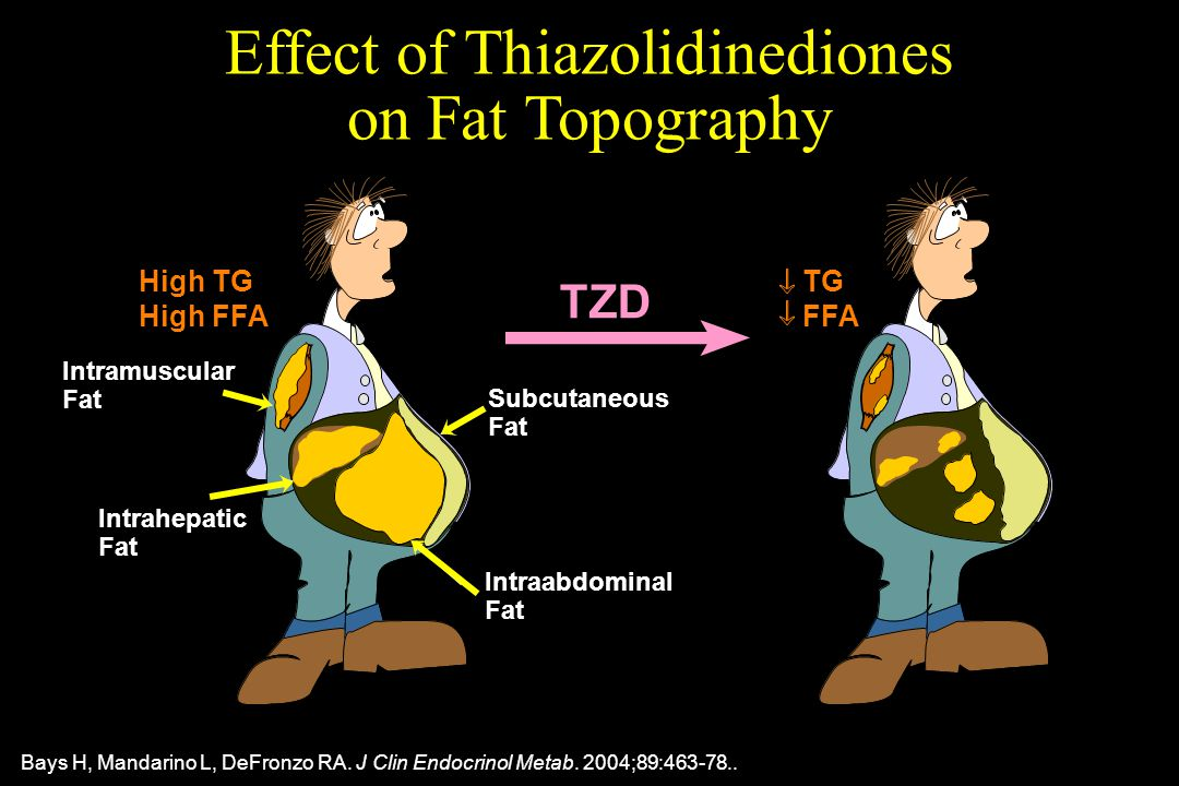 Effect of Thiazolidinediones