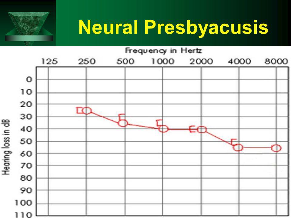 Neural Presbyacusis