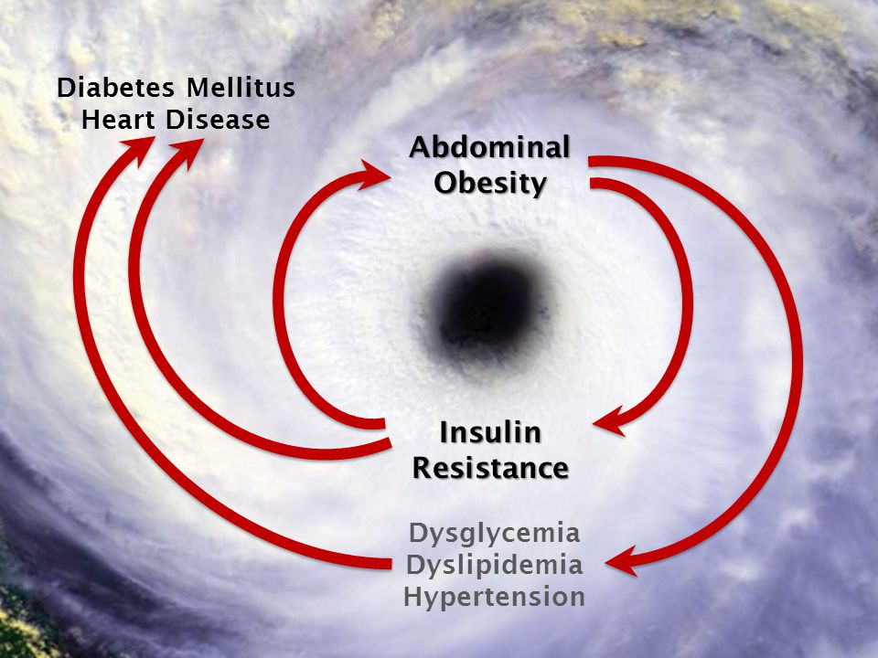 Abdominal Obesity Insulin Resistance