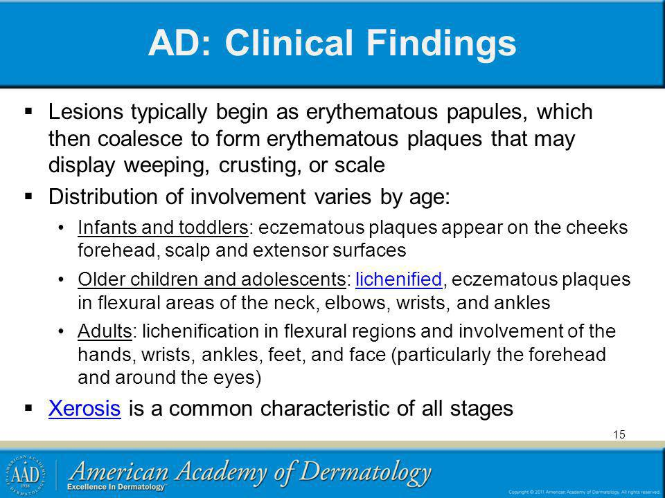 AD: Clinical Findings